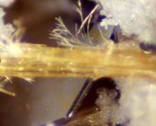 amianto mesotelioma